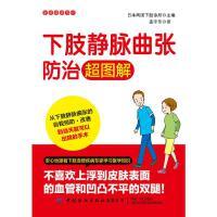 下肢静脉曲张防治超图解/家庭健康常识 中国纺织出版社