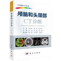 颅脑和头颈部CT诊断