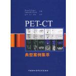 PET-CT典型案例集萃