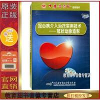 冠心病介入治疗实用技术 冠状动脉造影 1CD-ROM